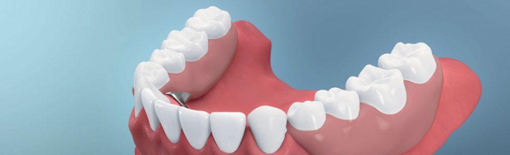 Längeres Leben durch Zahnprothesen?