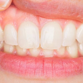 Krebsrisiko bei Parodontitis um bis zu 50 % höher
