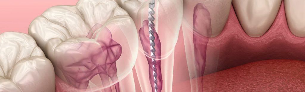 Wurzelkanalbehandlungen: neue Alternative durch Gewebetransplantation