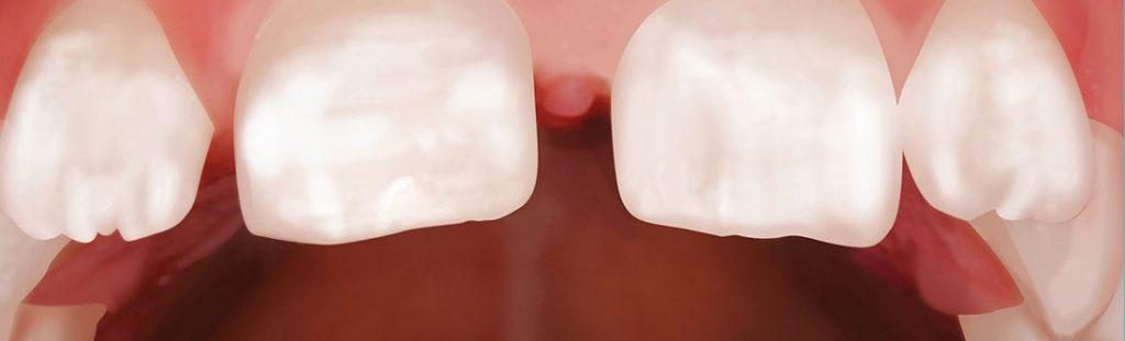 Kreidezähne: Acht Prozent der Sechs- bis Neunjährigen betroffen